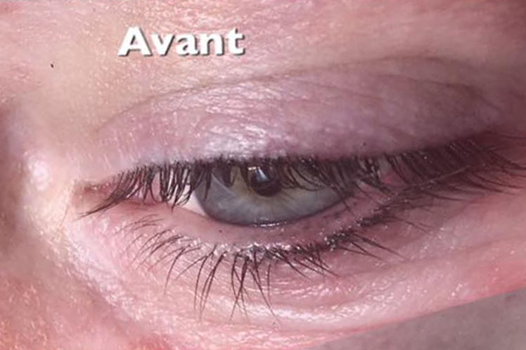 Maquillage permanent eye-liner Hyeres toulon var